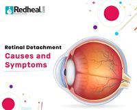 Retinal detachment, a situation where the retina, located at the back of the eye, shift from its normal position. Retinal detachment also leads to separation of retinal cells from the blood vessel layer thus effecting.