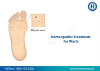 homeopathy treatment for warts.jpg