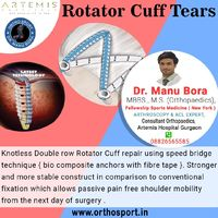 Knotless Double row Rotator Cuff repair using speed bridge technique { bio composite anchors with fibre tape }. Stronger and more stable construct in comparison to conventional fixation which allows passive pain free shoulder mobility from the next day of...
