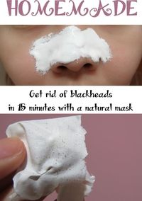 Get rid of blackheads in 15 minutes with a natural mask